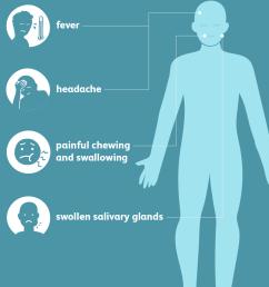 mumps symptoms [ 1001 x 1001 Pixel ]