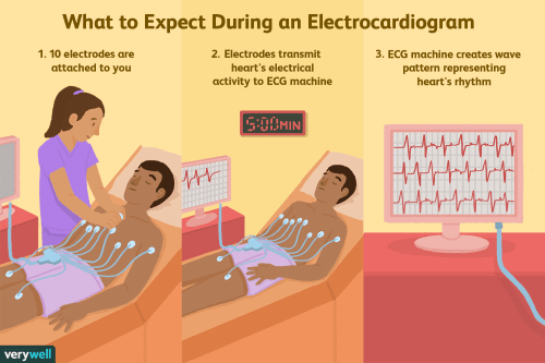 small resolution of what is an electrocardiogram ecg