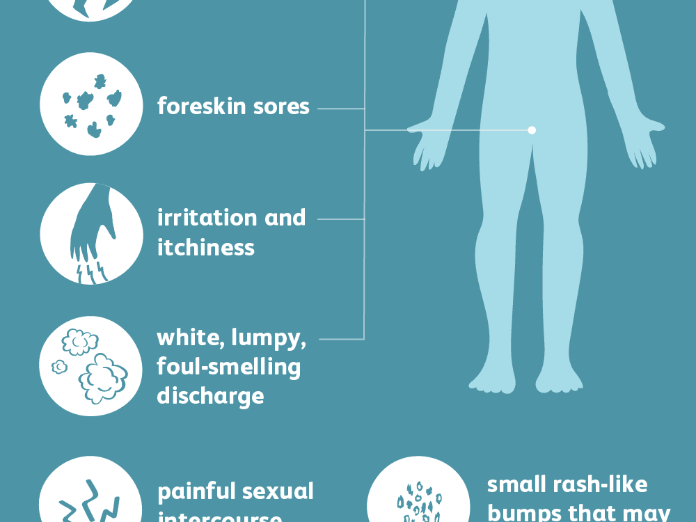 Male Yeast Infection Causes and Symptoms