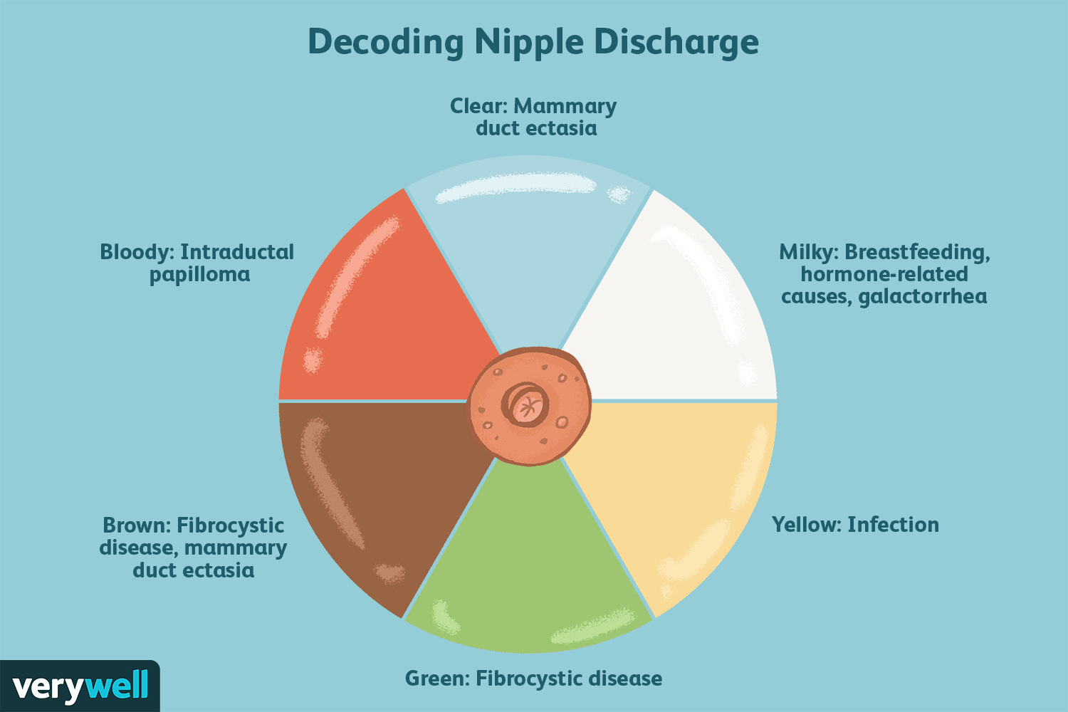 Nipple Discharge: Symptoms Causes Diagnosis and Treatment