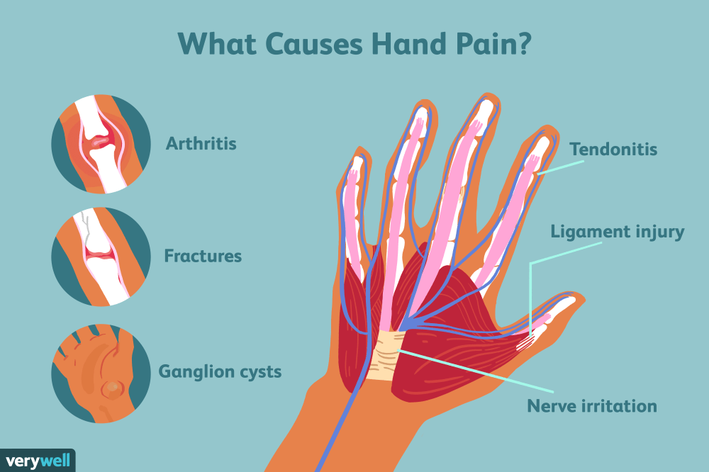 medium resolution of hand pain causes