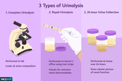 small resolution of 3 types of urinalysis