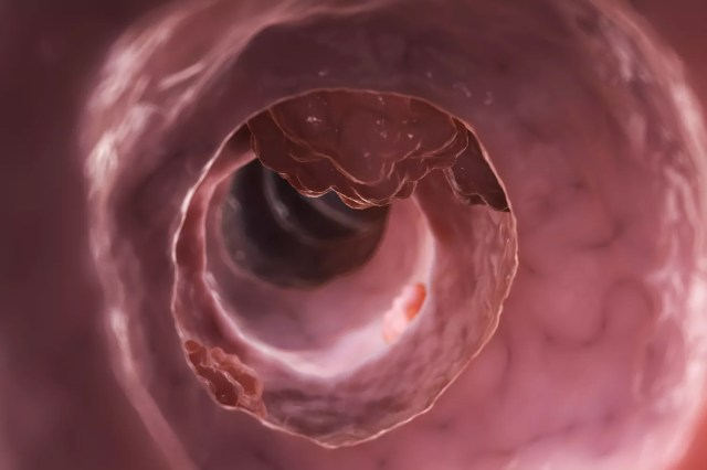 An illustration of colon cancer.