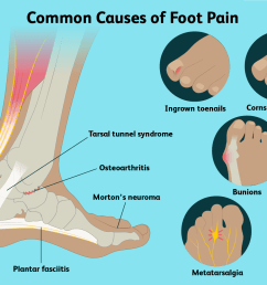 causes of foot pain and treatment options [ 1500 x 1000 Pixel ]