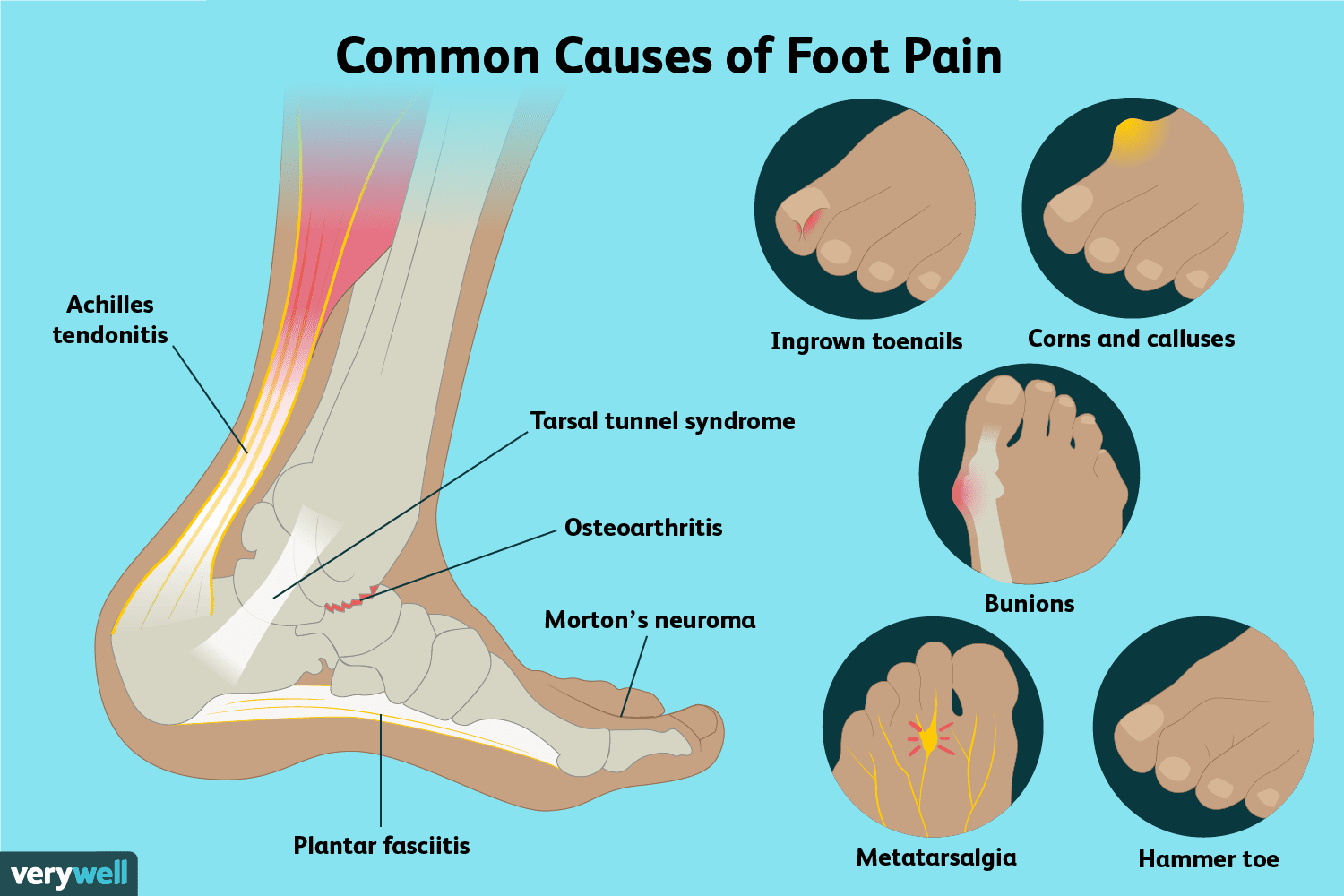 hight resolution of causes of foot pain and treatment options