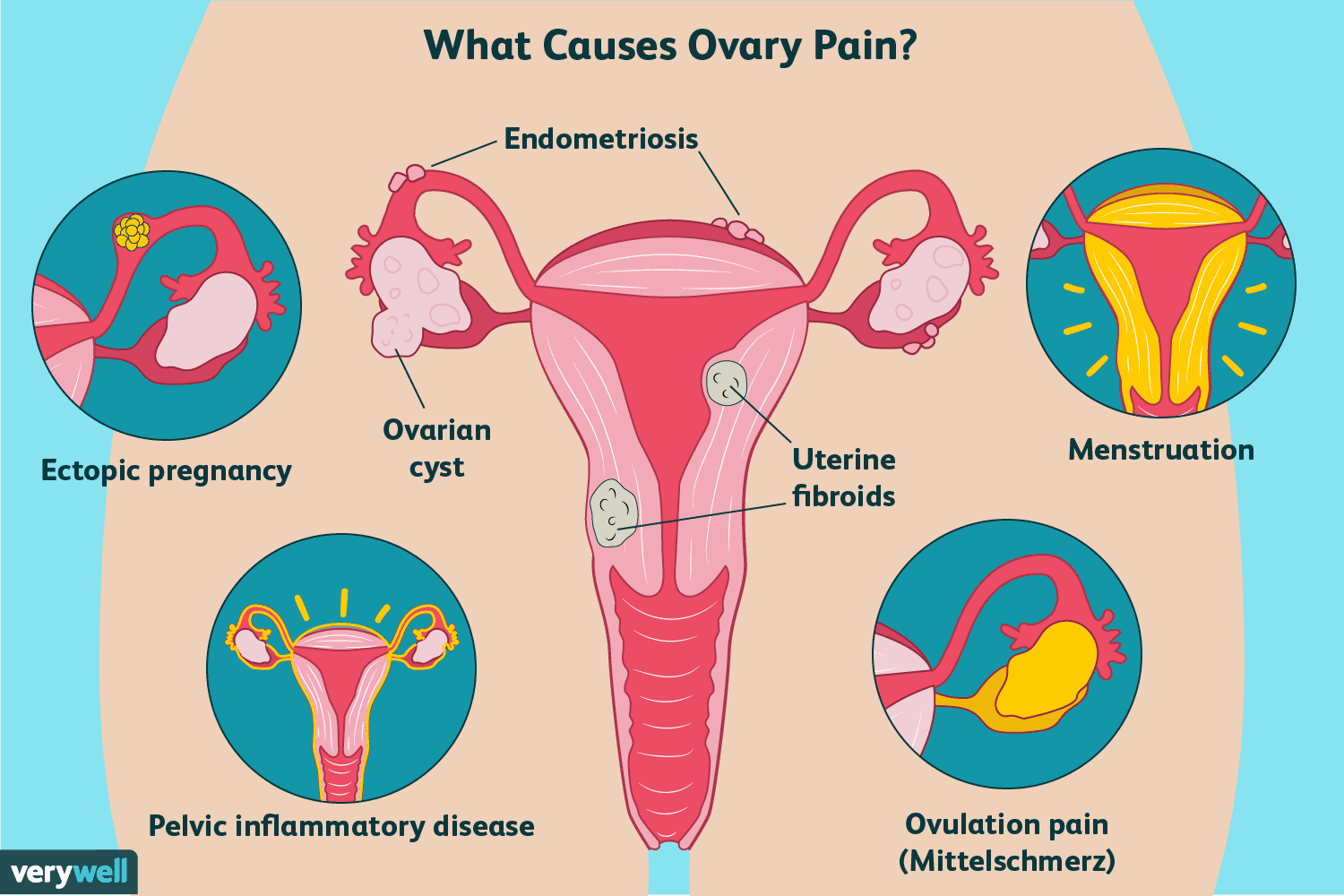 hight resolution of causes of ovary pain illustration
