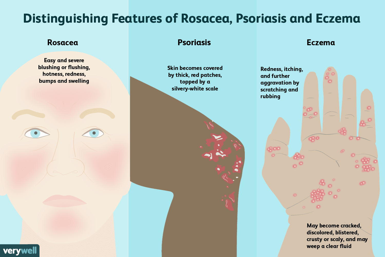 hight resolution of distinguishing features of rosacea psoriasis and eczema