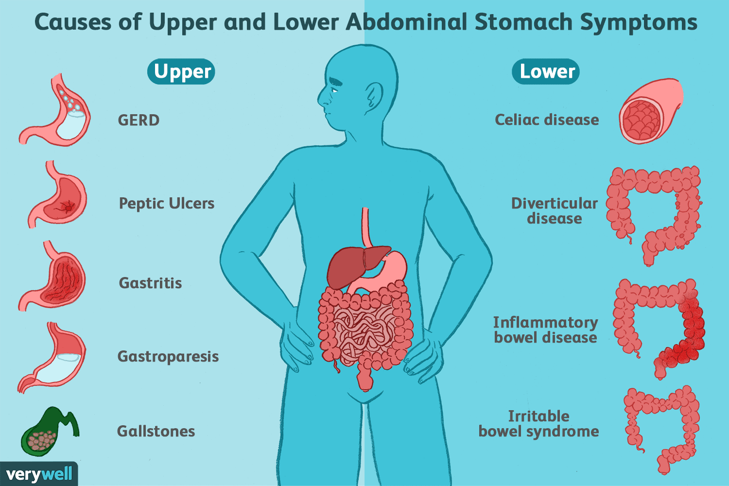 hight resolution of upper and lower abdominal stomach symptoms causes