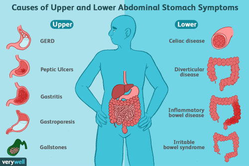 small resolution of upper and lower abdominal stomach symptoms causes