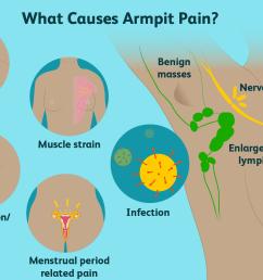 armpit pain causes [ 1500 x 1000 Pixel ]