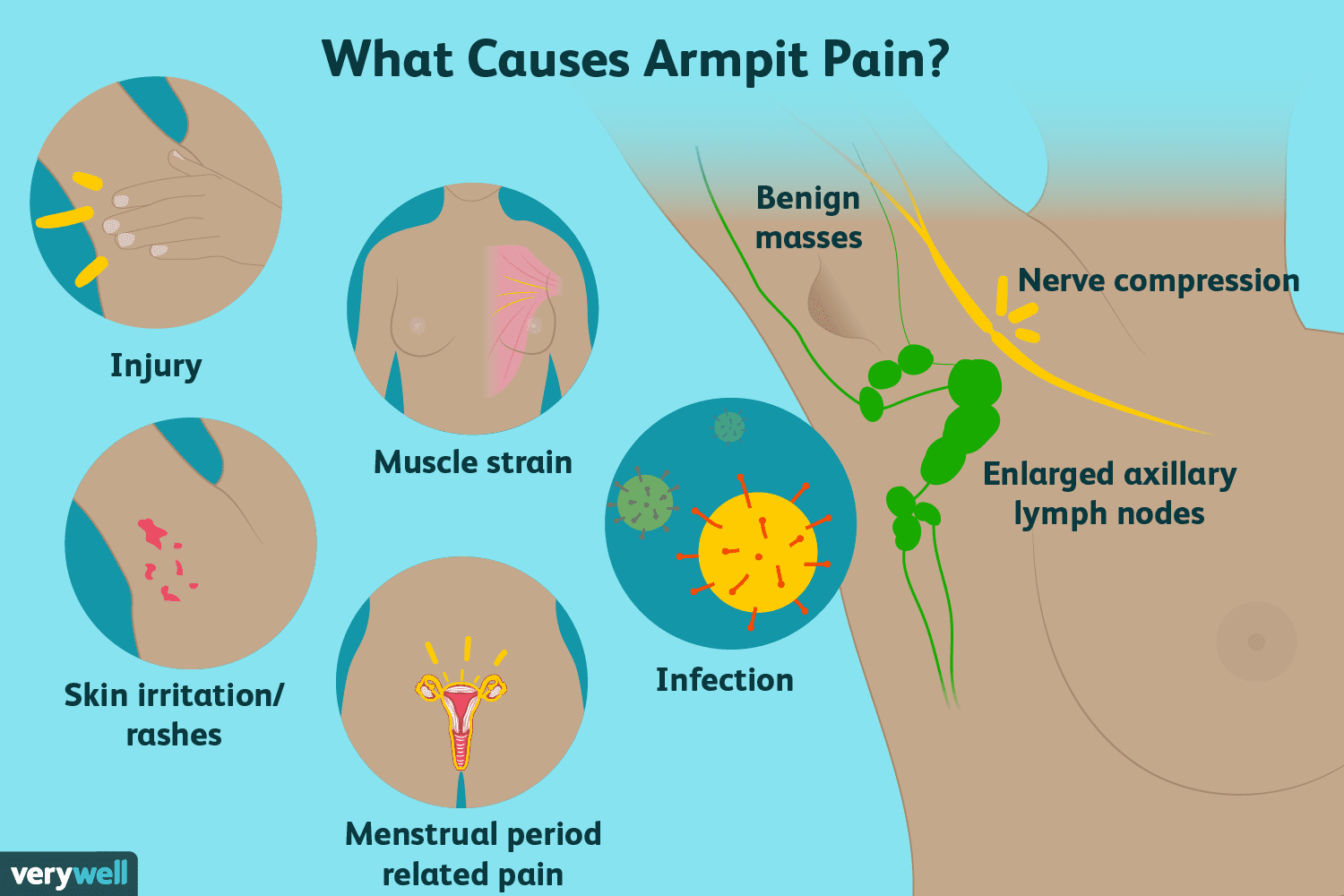 hight resolution of armpit pain causes