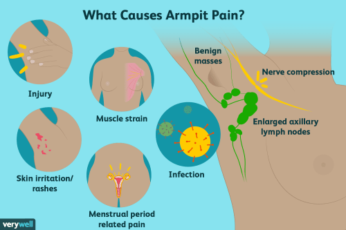 small resolution of armpit pain causes