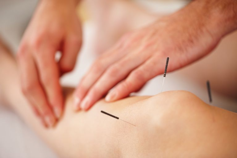 acupuncture the benefits how