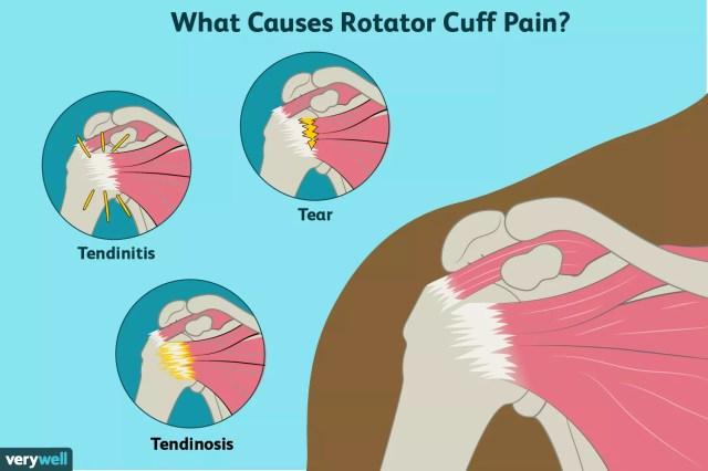 rotator cuff pain causes