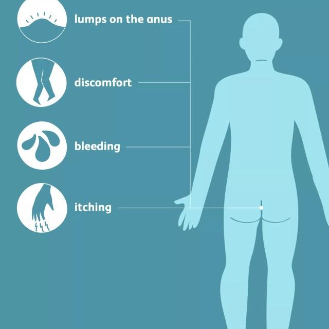 Symptoms of prolapsed hemorrhoids
