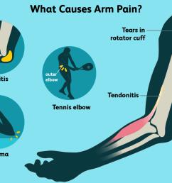 arm pain causes [ 1500 x 1000 Pixel ]