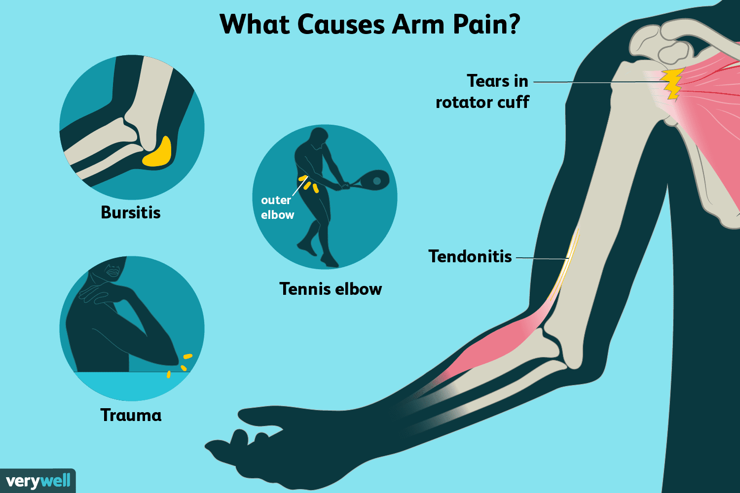 hight resolution of arm pain causes