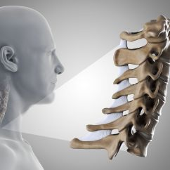 Best Chair After Neck Surgery Fisher Price Spacesaver High Should You Have For Cervical Radiculopathy Bones That Make Up The Science Picture Co Getty Images