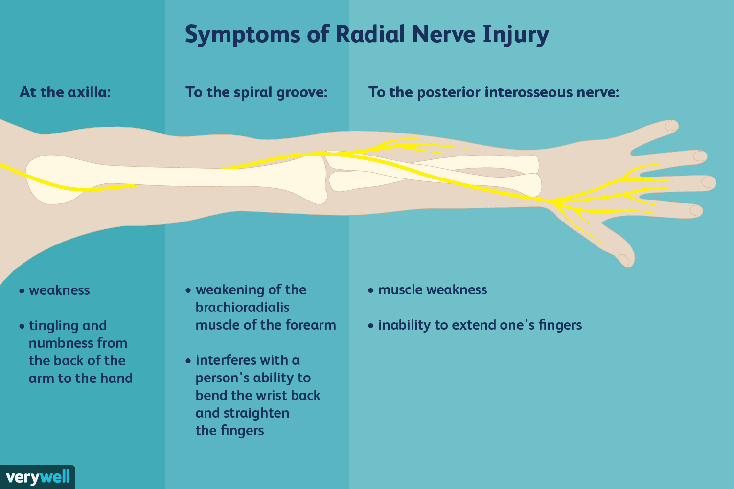 Causes And Treatment Of Radial Nerve Injuries