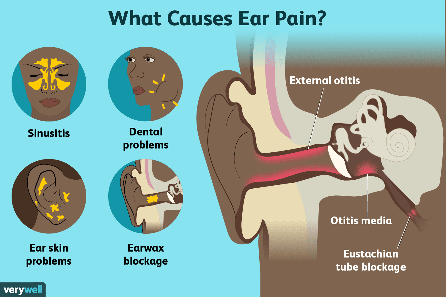 hight resolution of ear pain causes