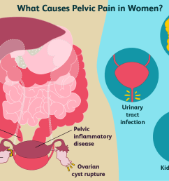 causes of pelvic pain in women [ 1500 x 1000 Pixel ]