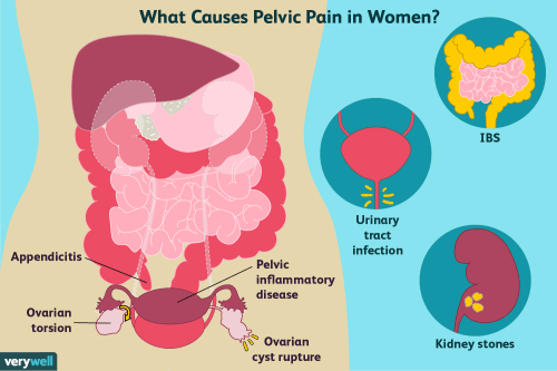 small resolution of causes of pelvic pain in women