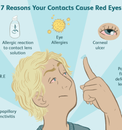 causes of red eyes with contacts [ 1500 x 1000 Pixel ]
