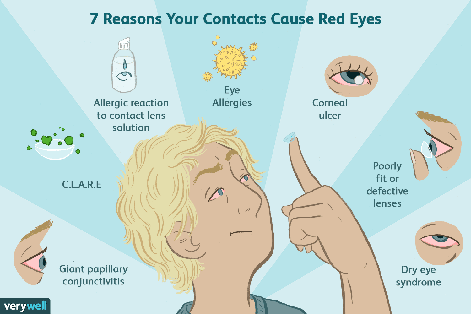 hight resolution of causes of red eyes with contacts