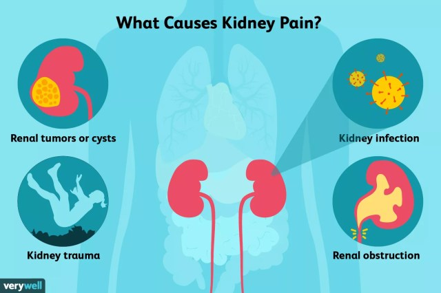 kidney pain causes