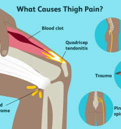 thigh pain causes [ 1500 x 1000 Pixel ]