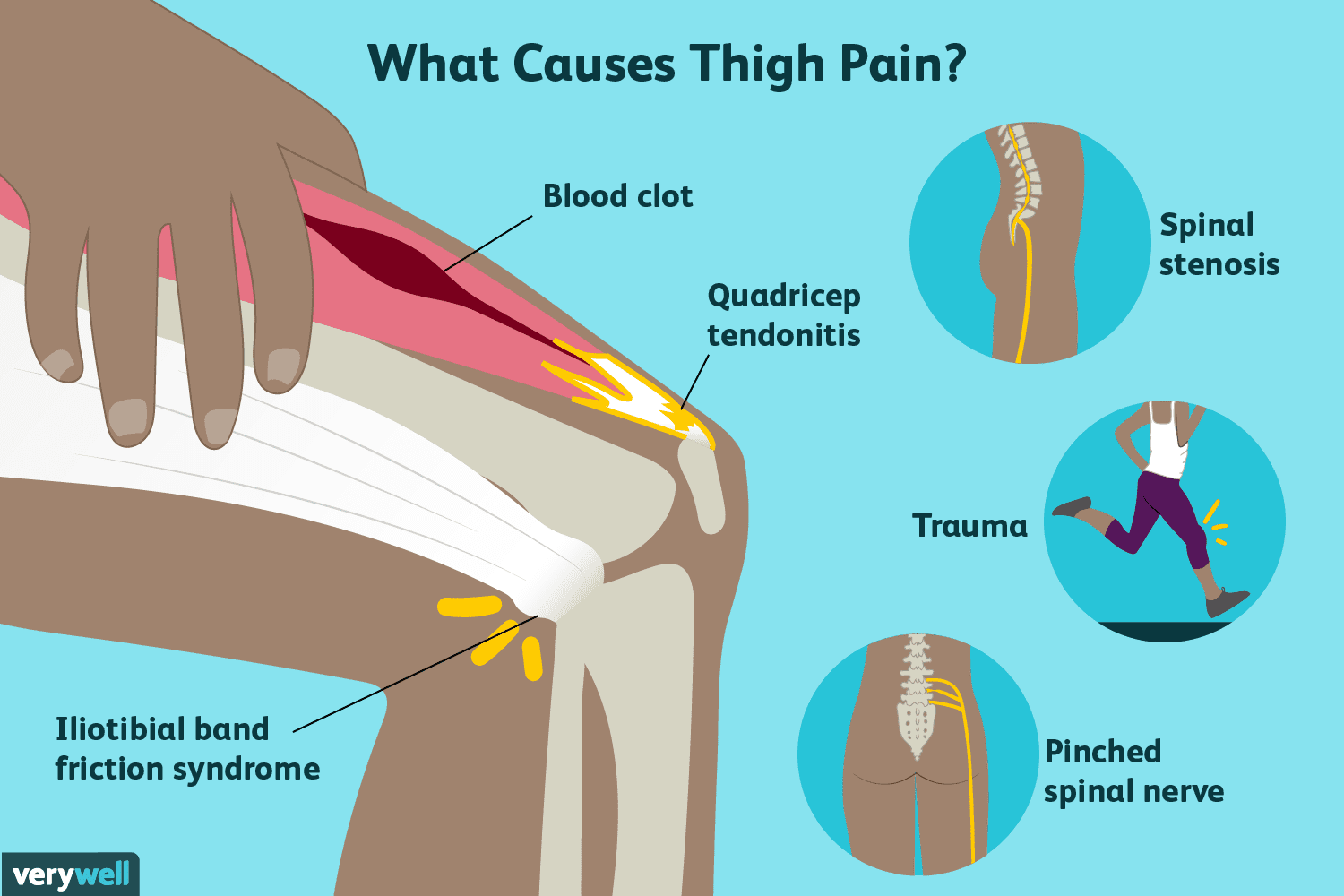 hight resolution of thigh pain causes