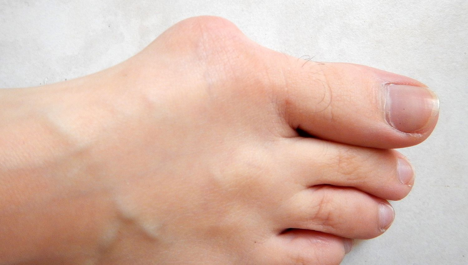 hight resolution of a bunion