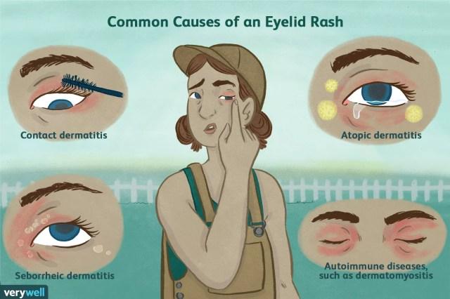 causes of an eyelid rash