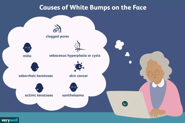 causes of white bumps on the face