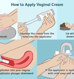 when to apply vaginal cream [ 1500 x 1000 Pixel ]