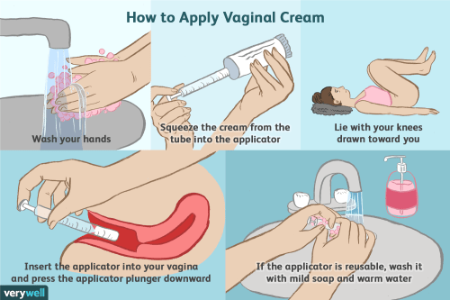 small resolution of when to apply vaginal cream