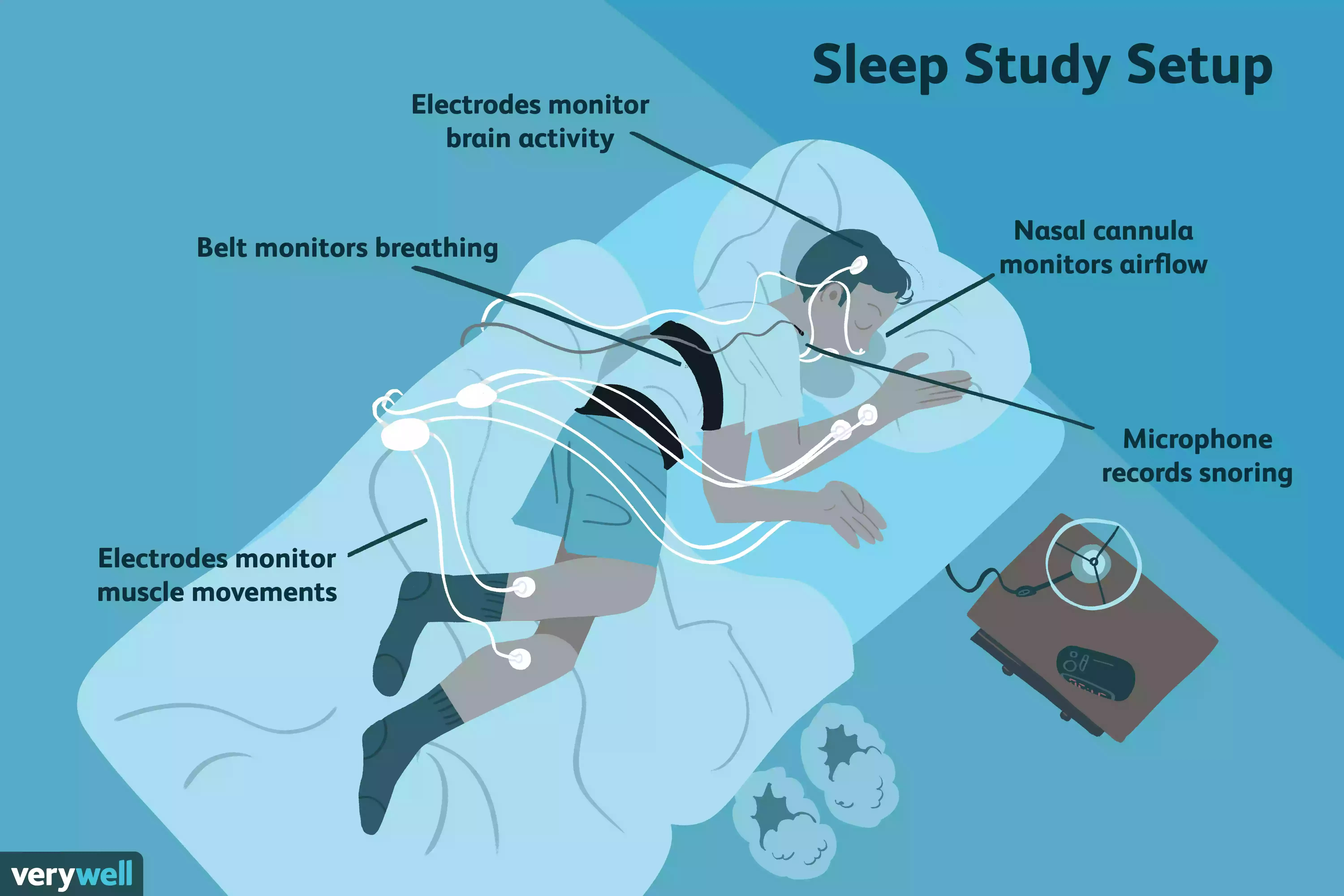 sleep study setup