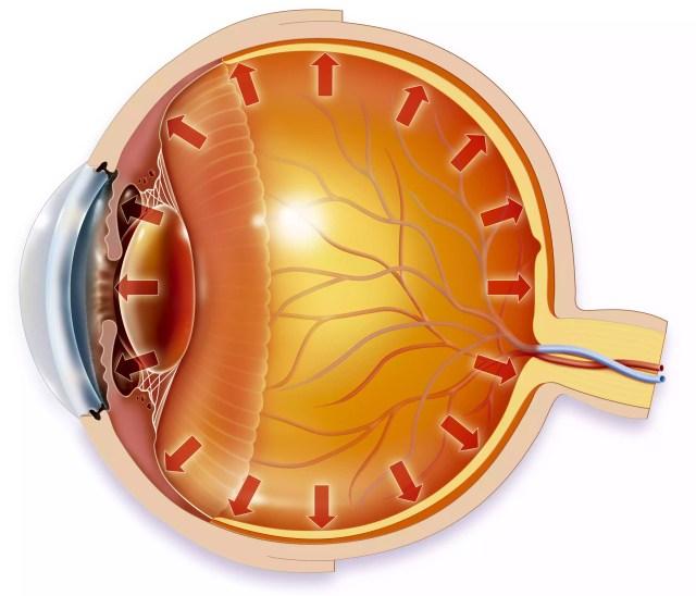 Une pression oculaire élevée peut endommager le nerf optique