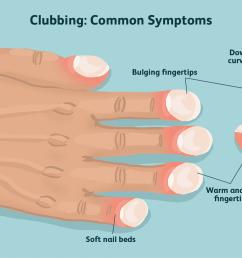 clubbing symptoms [ 1500 x 1000 Pixel ]