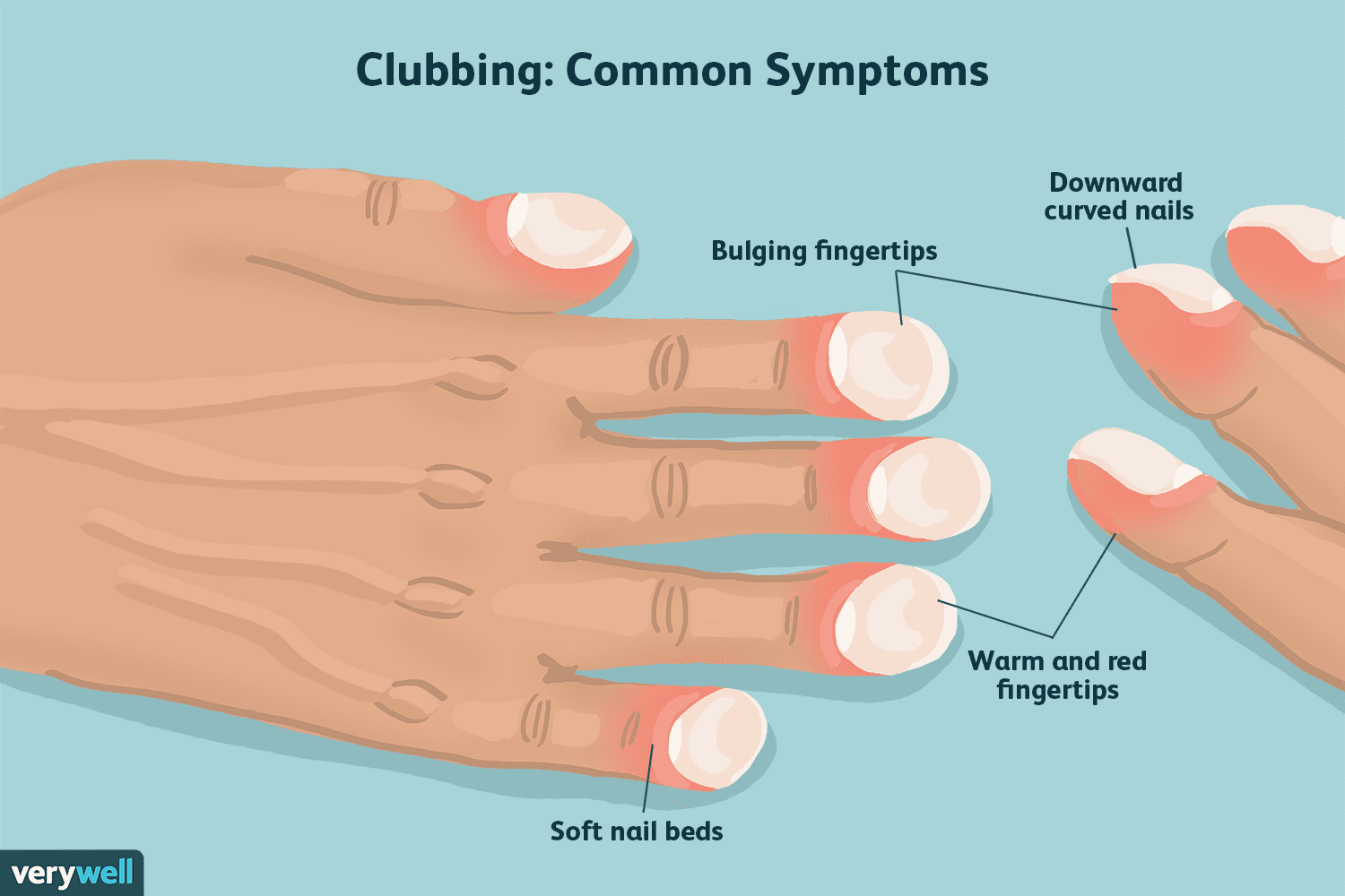 hight resolution of clubbing symptoms