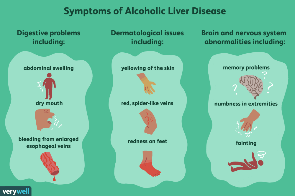 medium resolution of alcoholic liver disease diagram