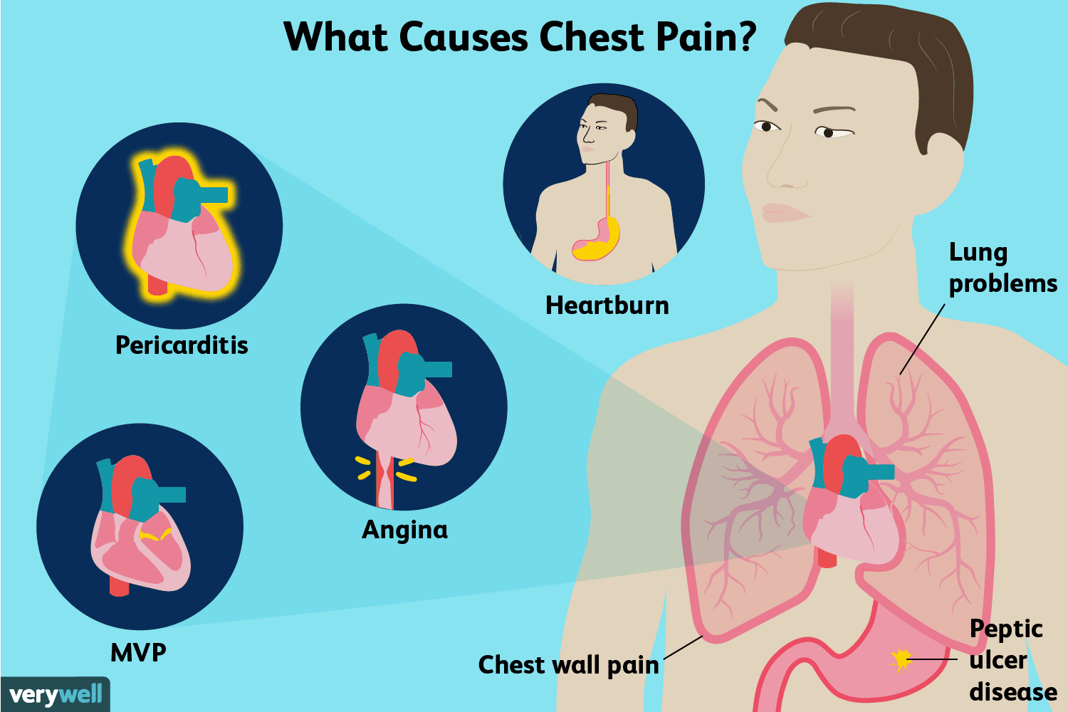 Chest Pain: Causes, Treatment, and When to See a Doctor