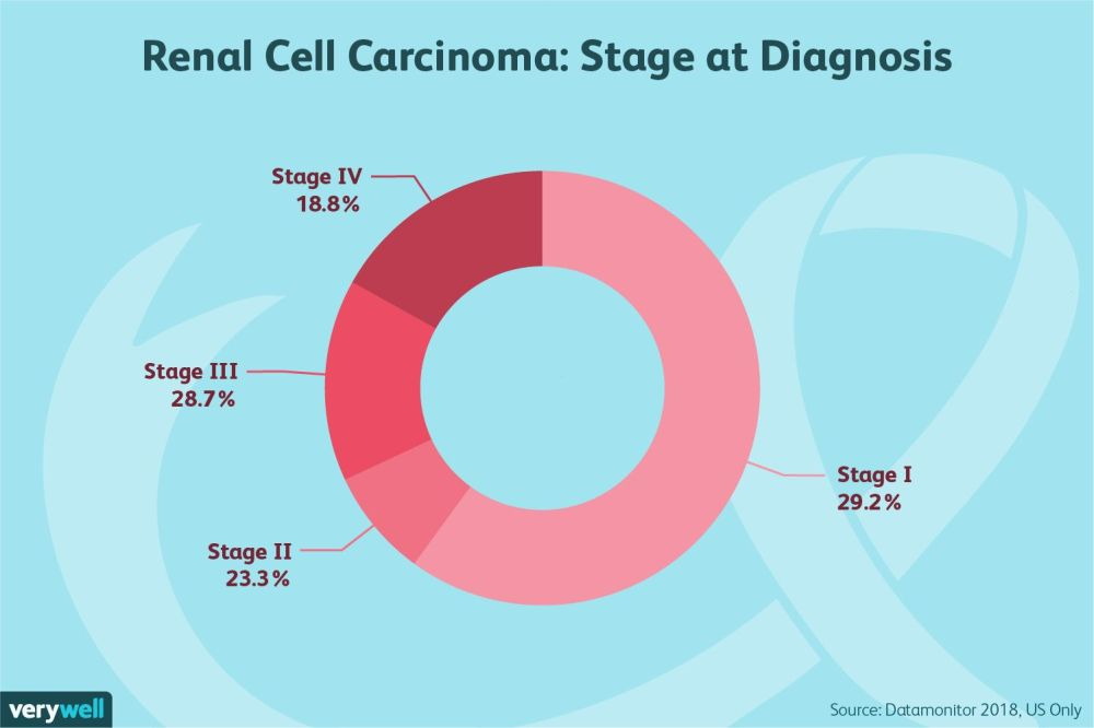 medium resolution of renal cell carcinoma stage at diagnosis