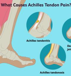 achilles tendon pain causes [ 1500 x 1000 Pixel ]