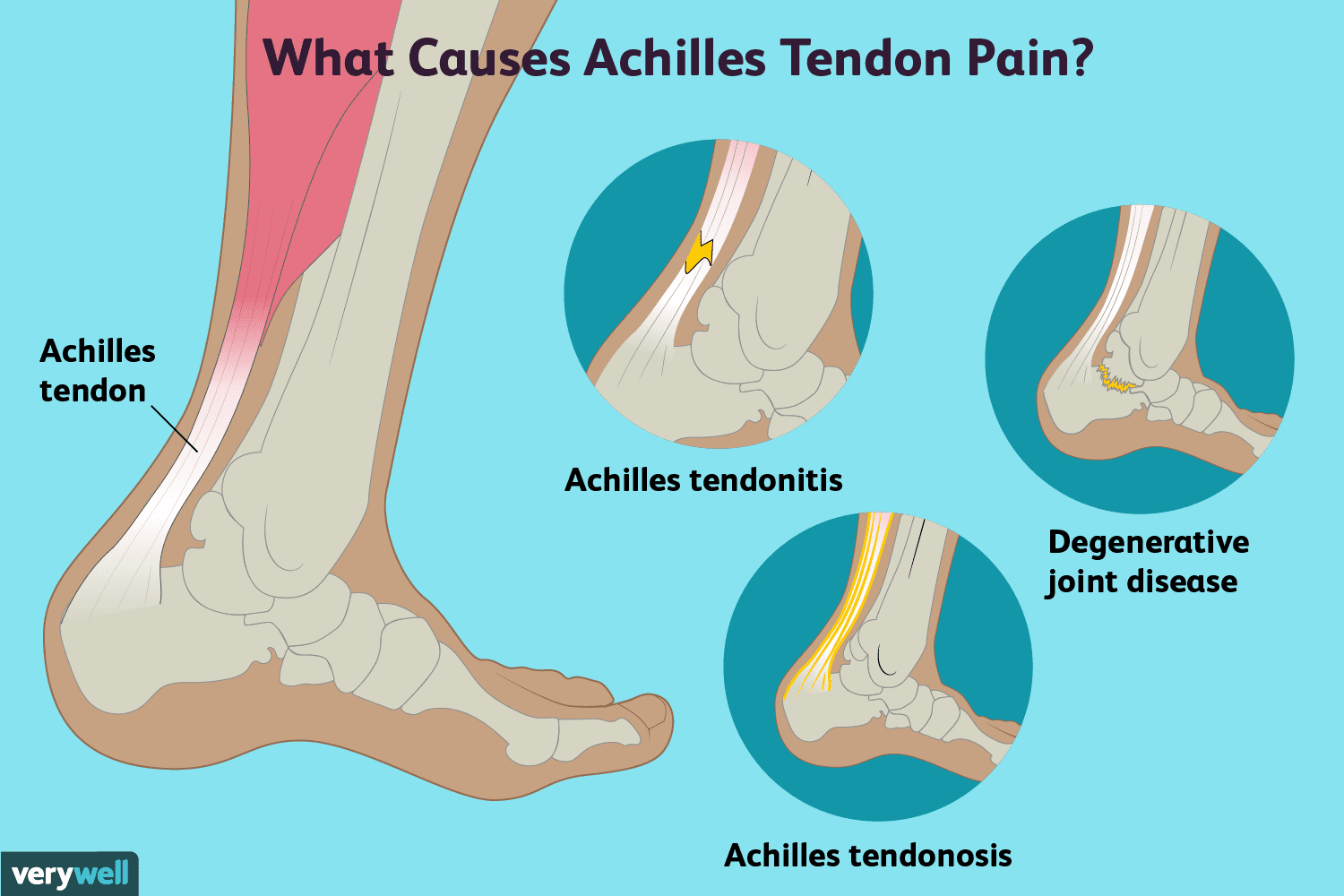 hight resolution of achilles tendon pain causes