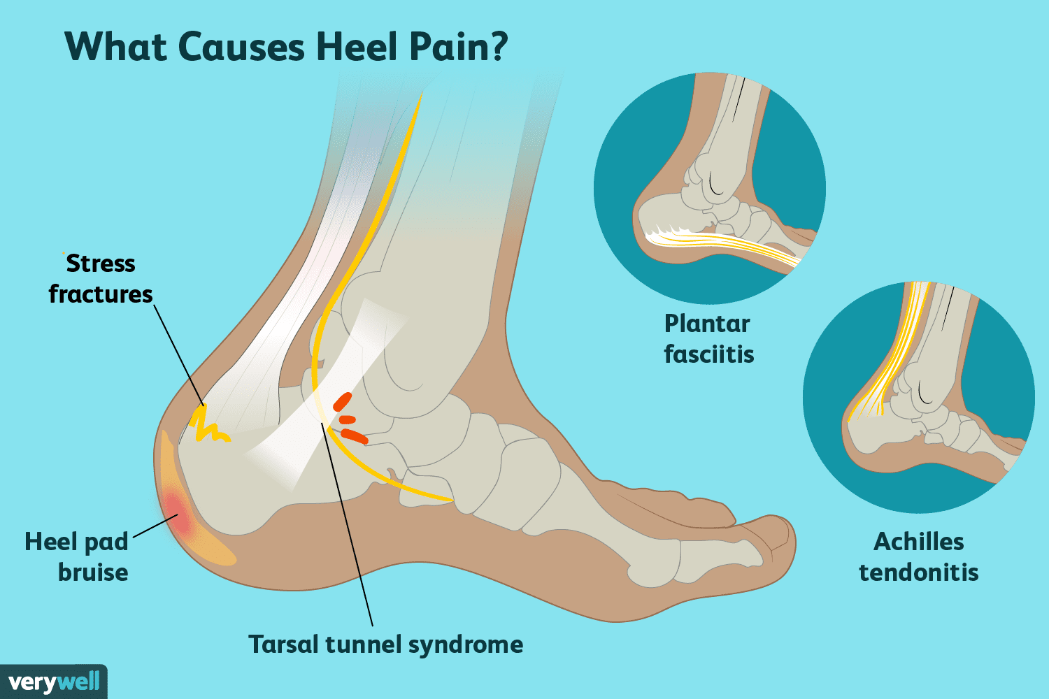 hight resolution of heel pain causes