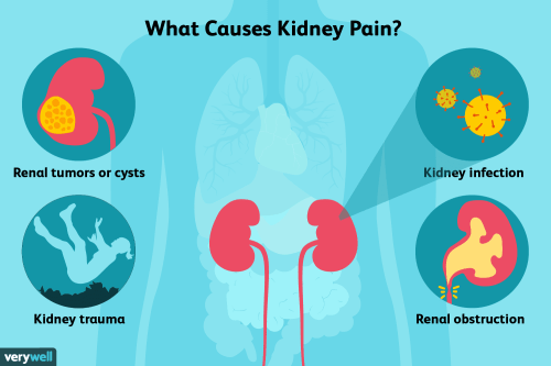 small resolution of kidney pain causes