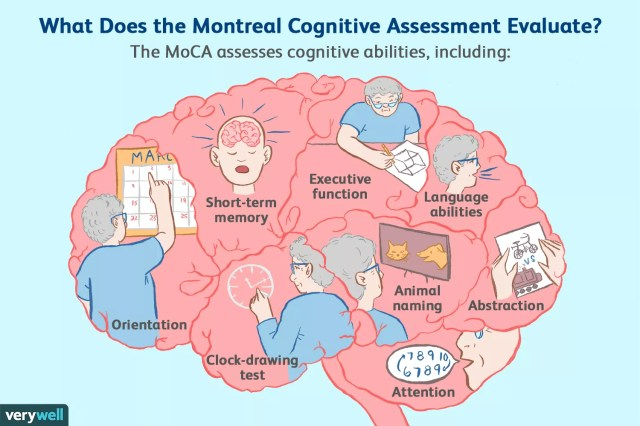 montreal cognitive assessment (MoCA) evaluation