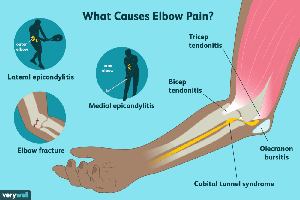 medium resolution of causes of elbow pain