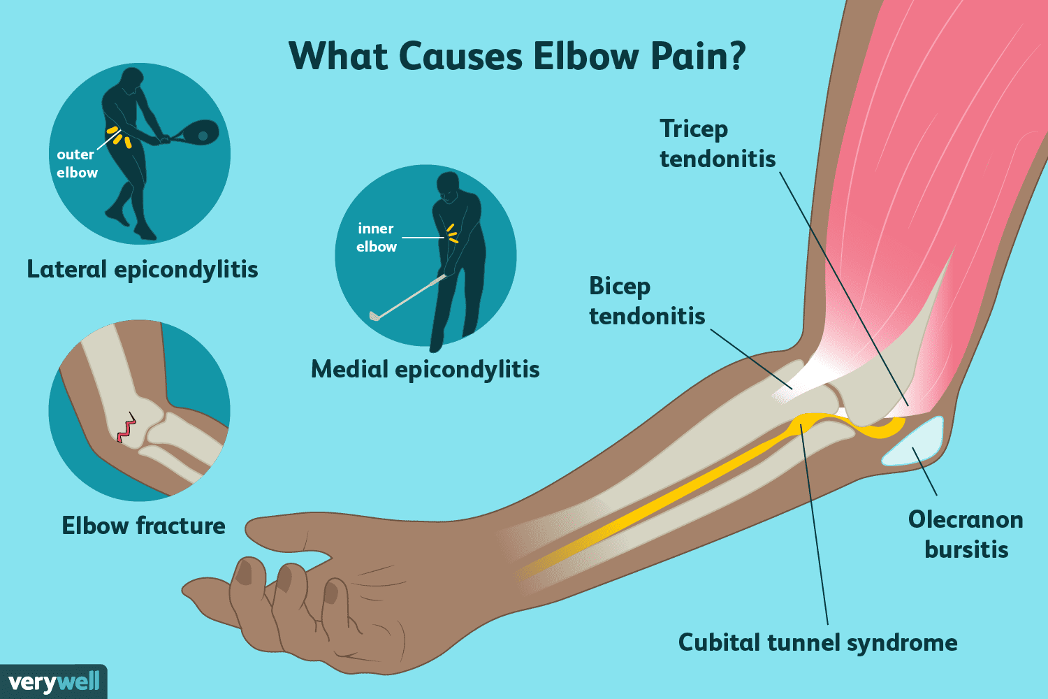 hight resolution of causes of elbow pain